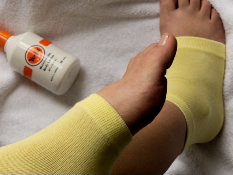 Heel and Elbow Moisturizing Sock by Yu-Be - 1